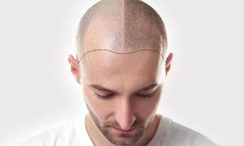 Tricopigmentação (Micropigmentação para Calvície)